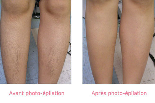 Avant / après Photo-épilation